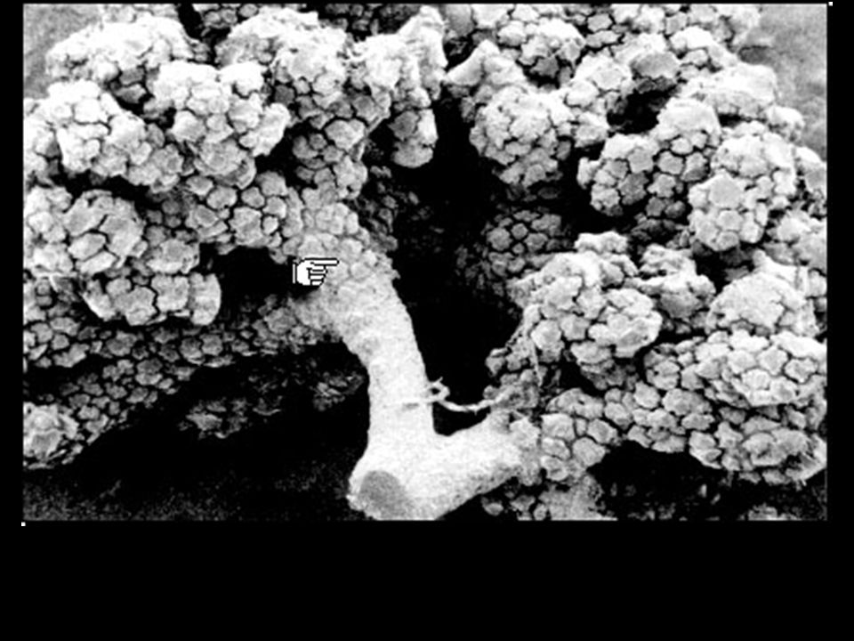 These two scanning electron micrographs show the organization of the pulmonary acinus.