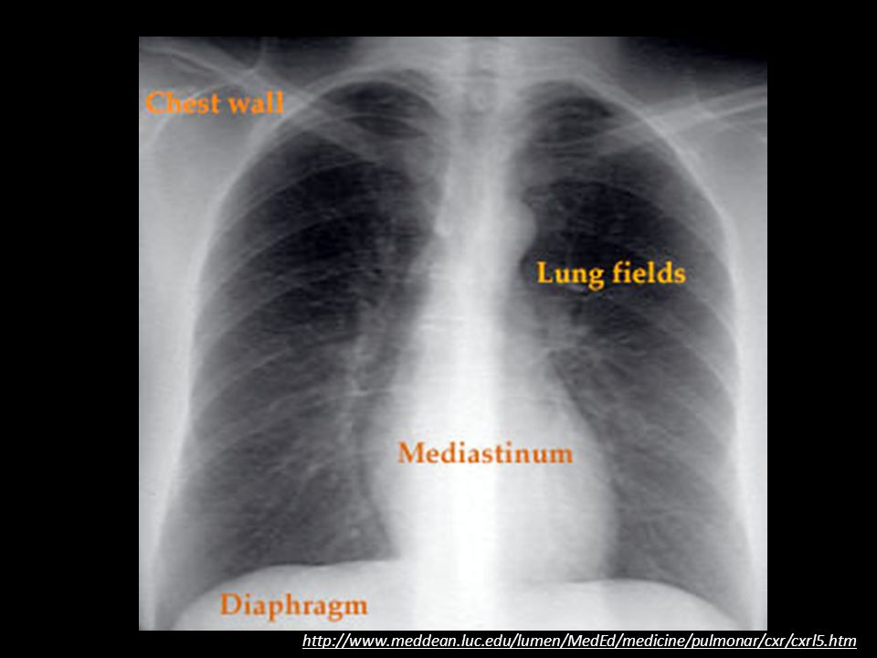 http://www. meddean. luc. edu/lumen/MedEd/medicine/pulmonar/cxr/cxrl5