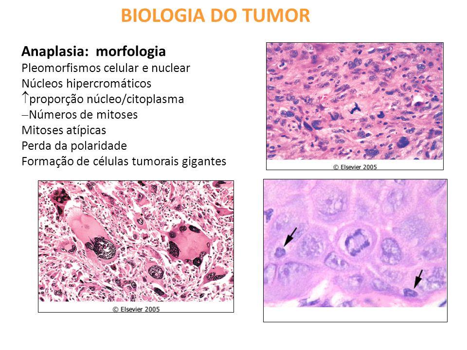 BIOLOGIA DO TUMOR Anaplasia: morfologia