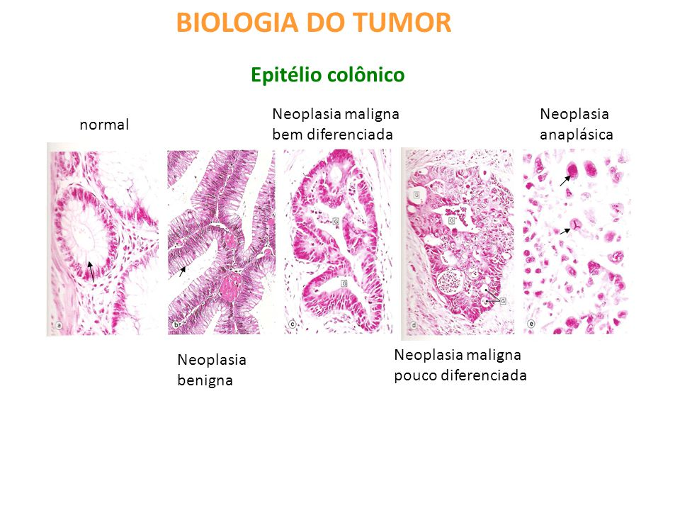 BIOLOGIA DO TUMOR Epitélio colônico Neoplasia maligna bem diferenciada