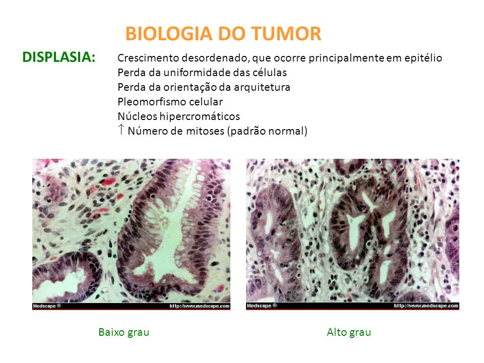 BIOLOGIA DO TUMOR DISPLASIA: