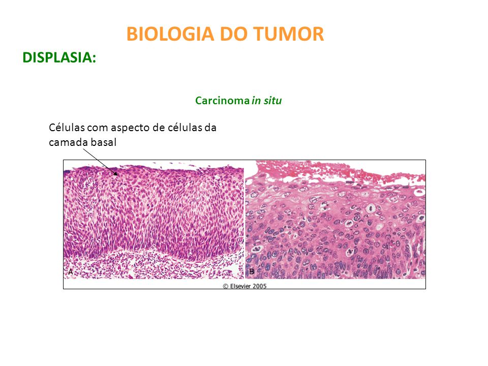 BIOLOGIA DO TUMOR DISPLASIA: Carcinoma in situ