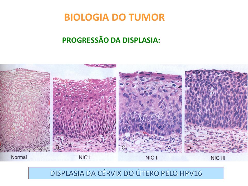 DISPLASIA DA CÉRVIX DO ÚTERO PELO HPV16