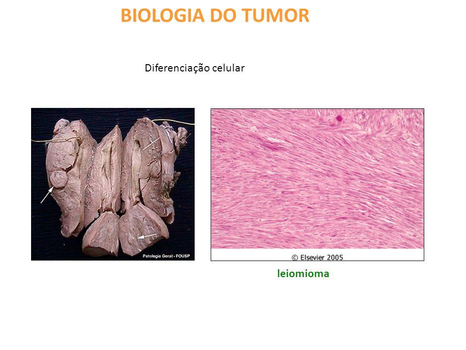 BIOLOGIA DO TUMOR Diferenciação celular leiomioma