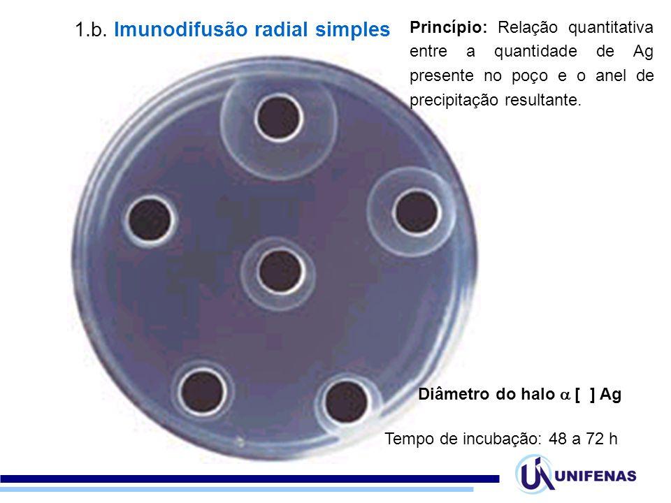 1.b. Imunodifusão radial simples