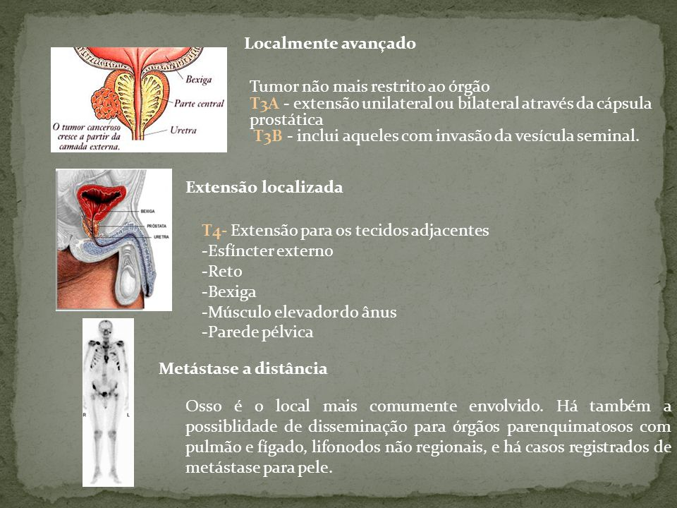 Tumor não mais restrito ao órgão