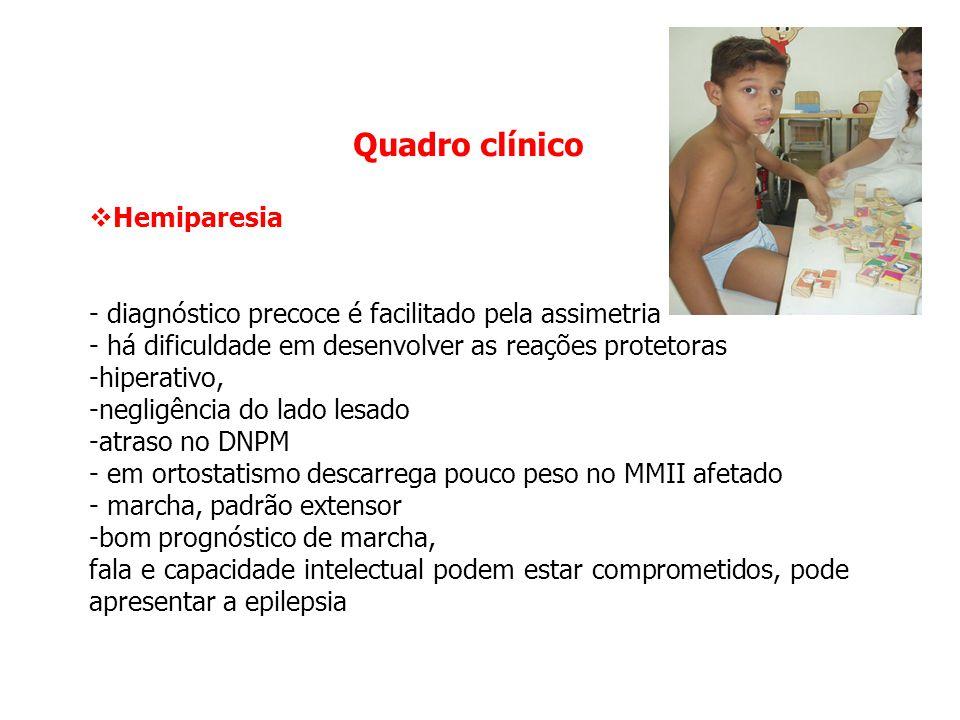 Quadro clínico Hemiparesia