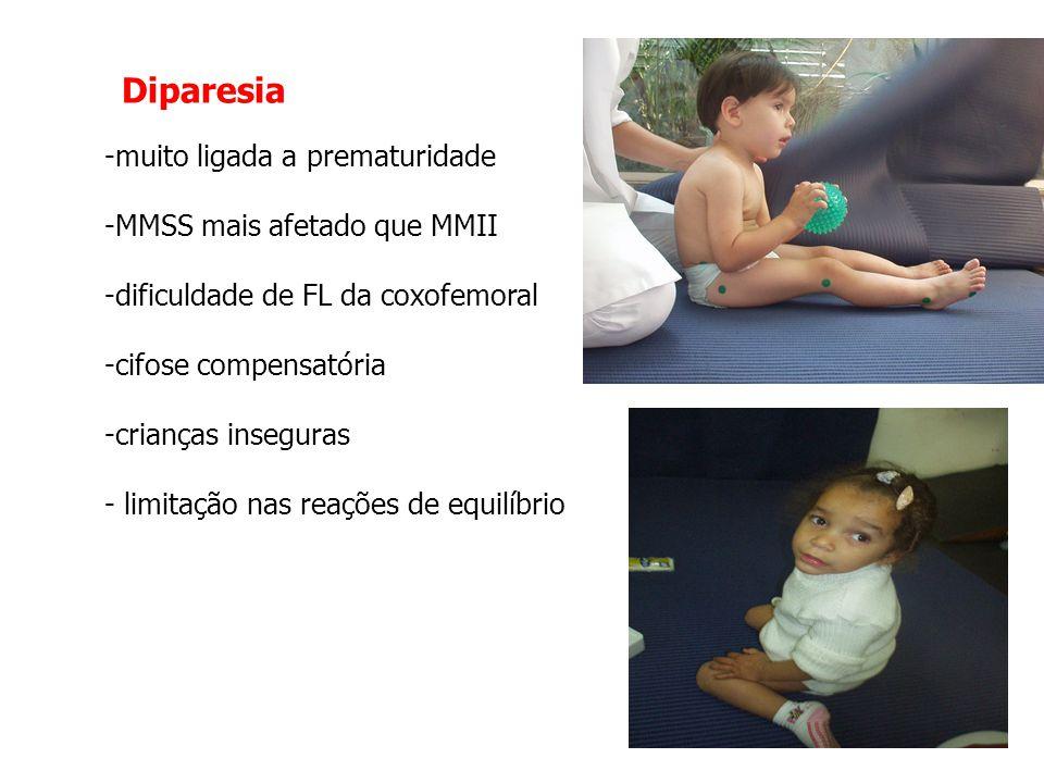 Diparesia muito ligada a prematuridade MMSS mais afetado que MMII