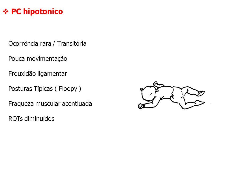  PC hipotonico Ocorrência rara / Transitória Pouca movimentação
