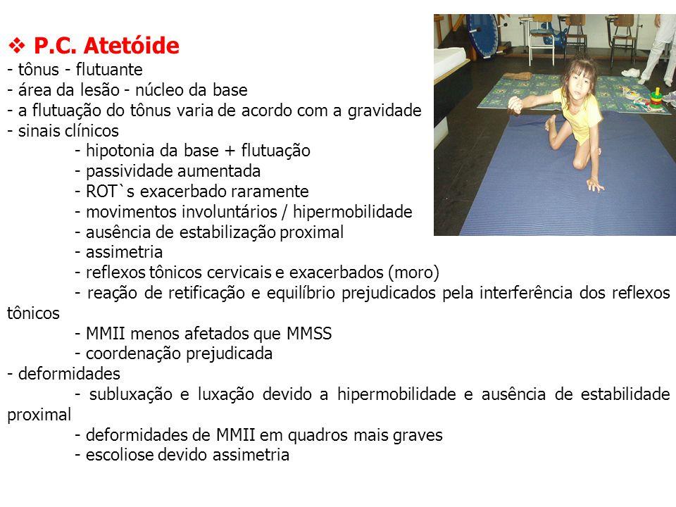  P.C. Atetóide - tônus - flutuante - área da lesão - núcleo da base