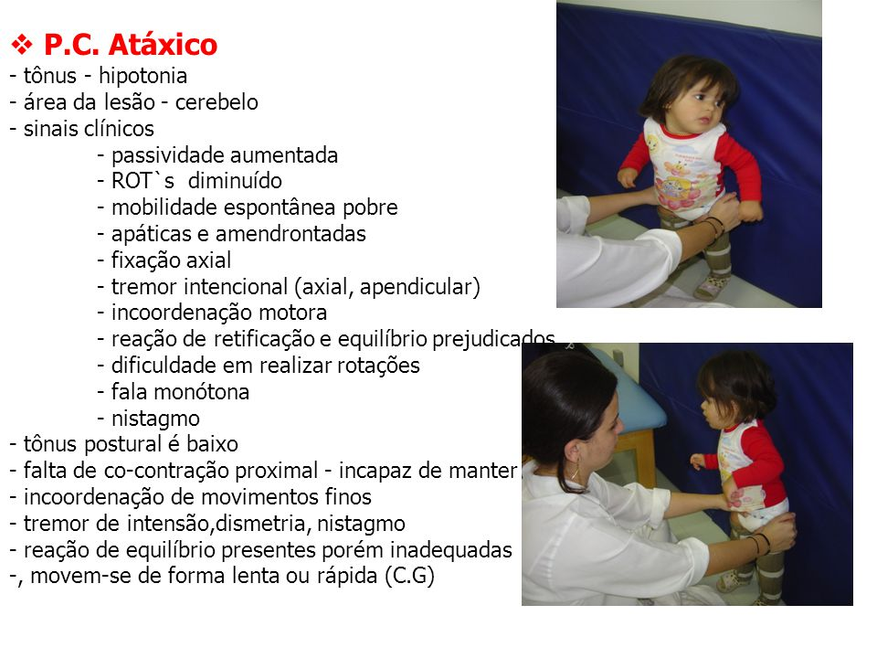  P.C. Atáxico - tônus - hipotonia - área da lesão - cerebelo