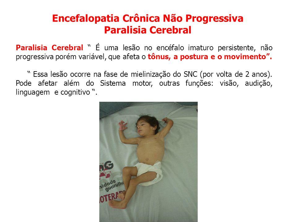 Encefalopatia Crônica Não Progressiva