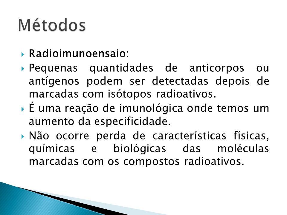 Métodos Radioimunoensaio: