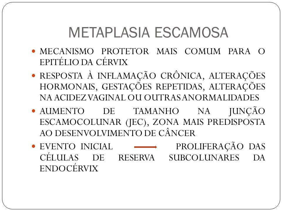 METAPLASIA ESCAMOSA MECANISMO PROTETOR MAIS COMUM PARA O EPITÉLIO DA CÉRVIX.