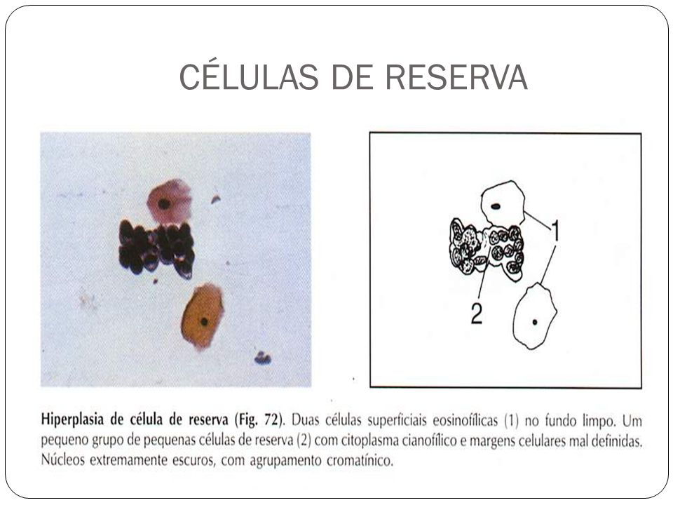 CÉLULAS DE RESERVA