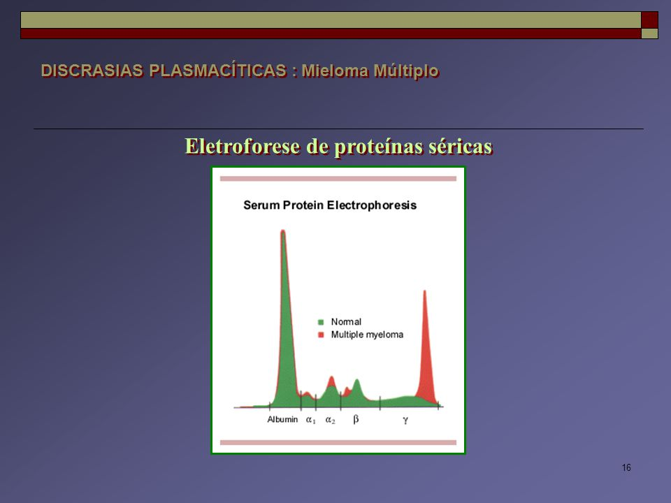 Eletroforese de proteínas séricas
