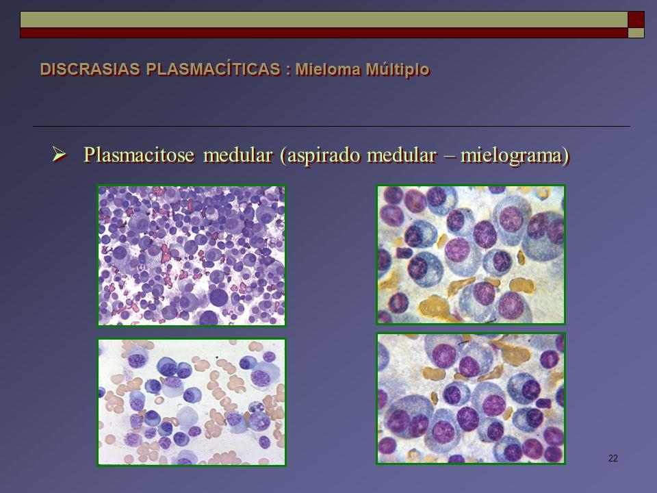 Plasmacitose medular (aspirado medular – mielograma)