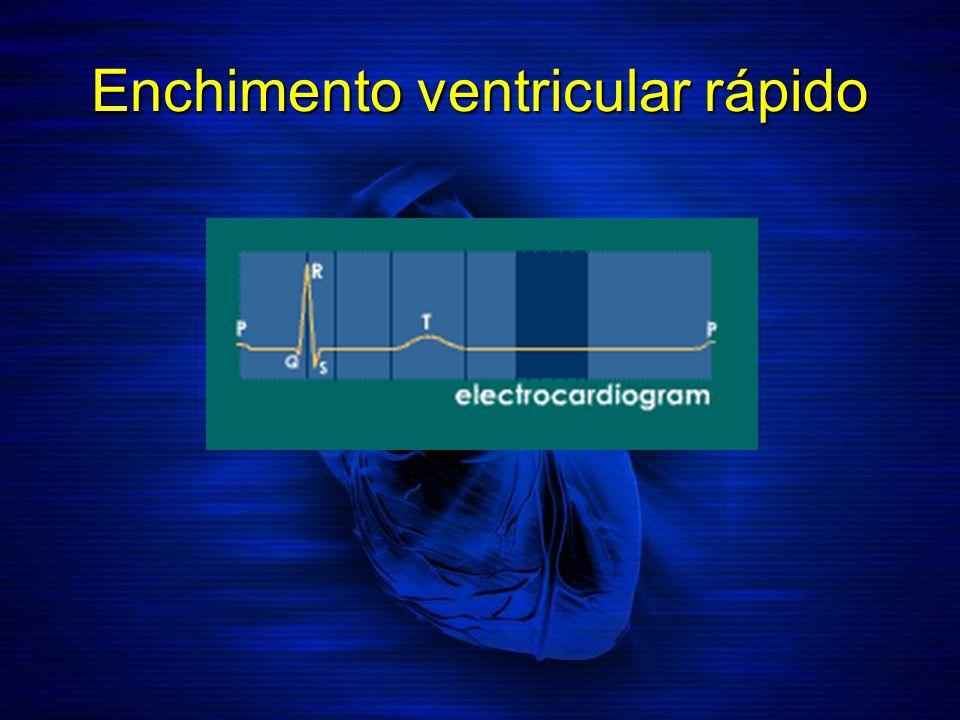 Enchimento ventricular rápido