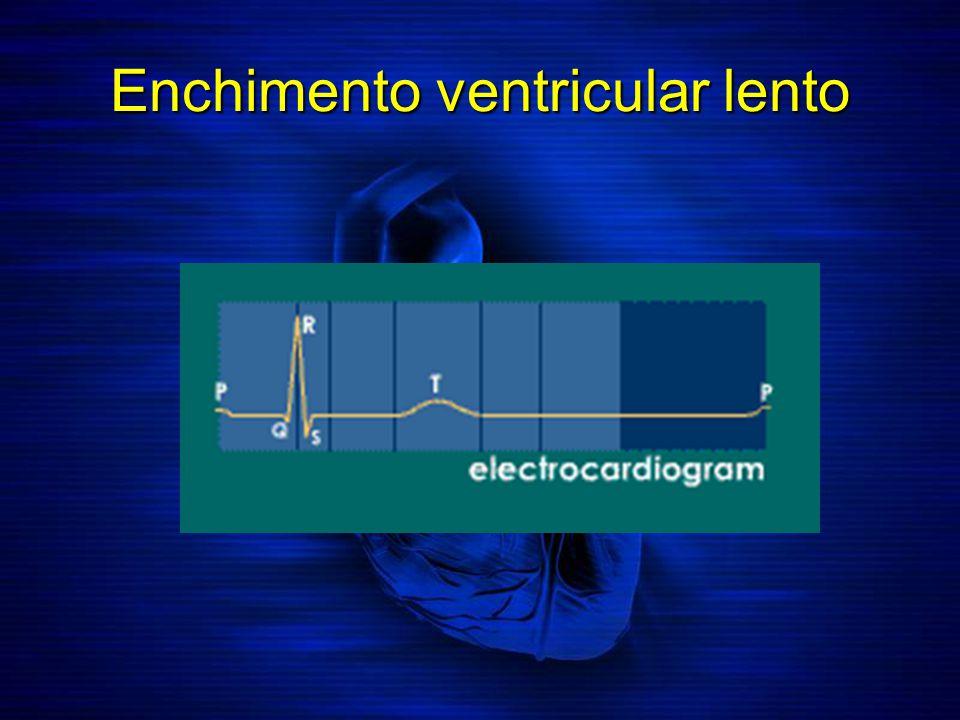 Enchimento ventricular lento