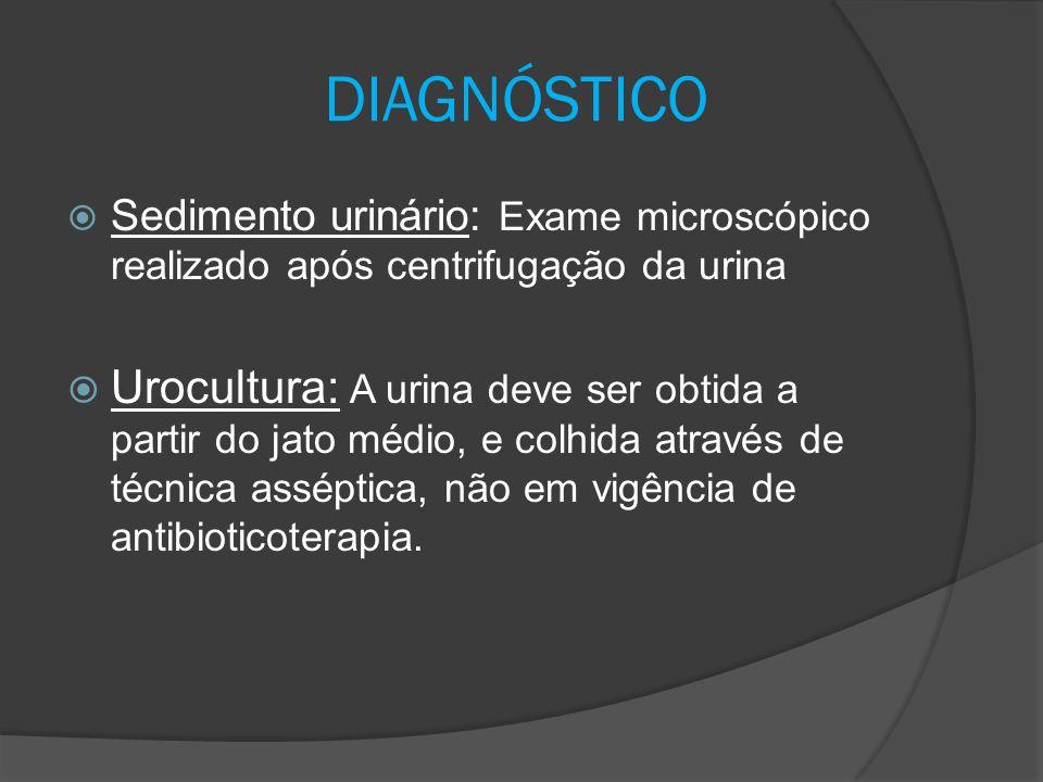 DIAGNÓSTICO Sedimento urinário: Exame microscópico realizado após centrifugação da urina.