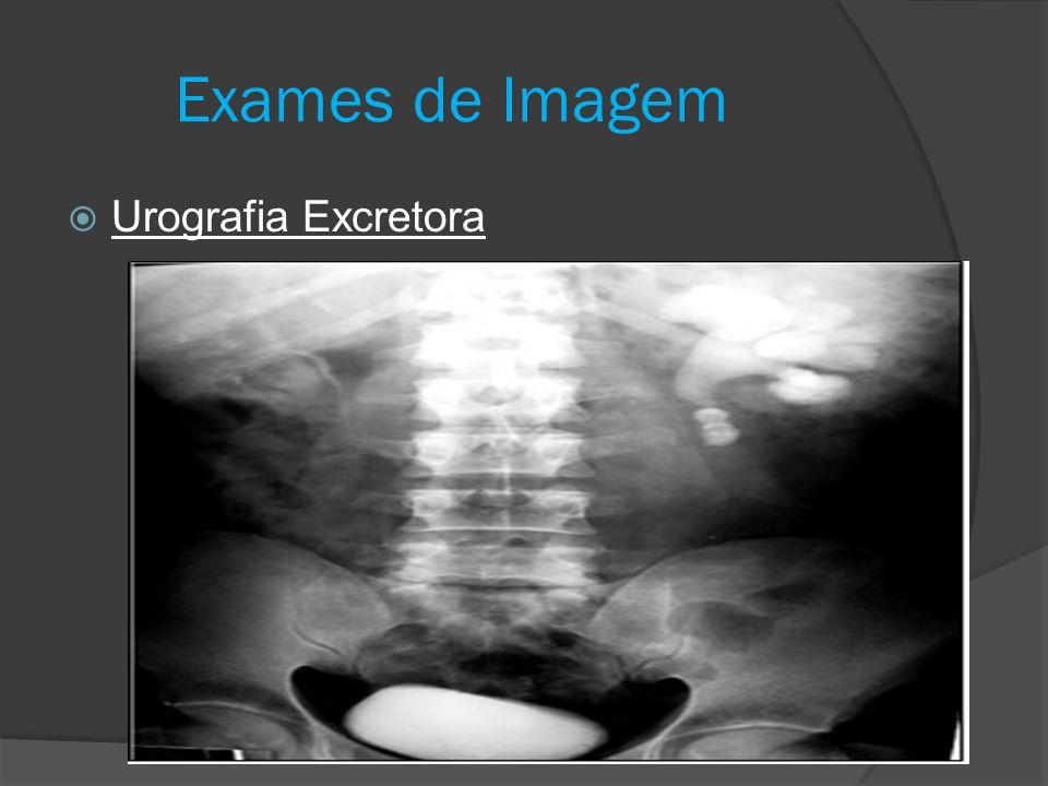 Exames de Imagem Urografia Excretora