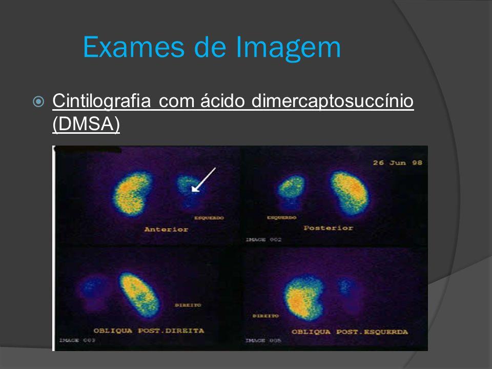 Exames de Imagem Cintilografia com ácido dimercaptosuccínio (DMSA)