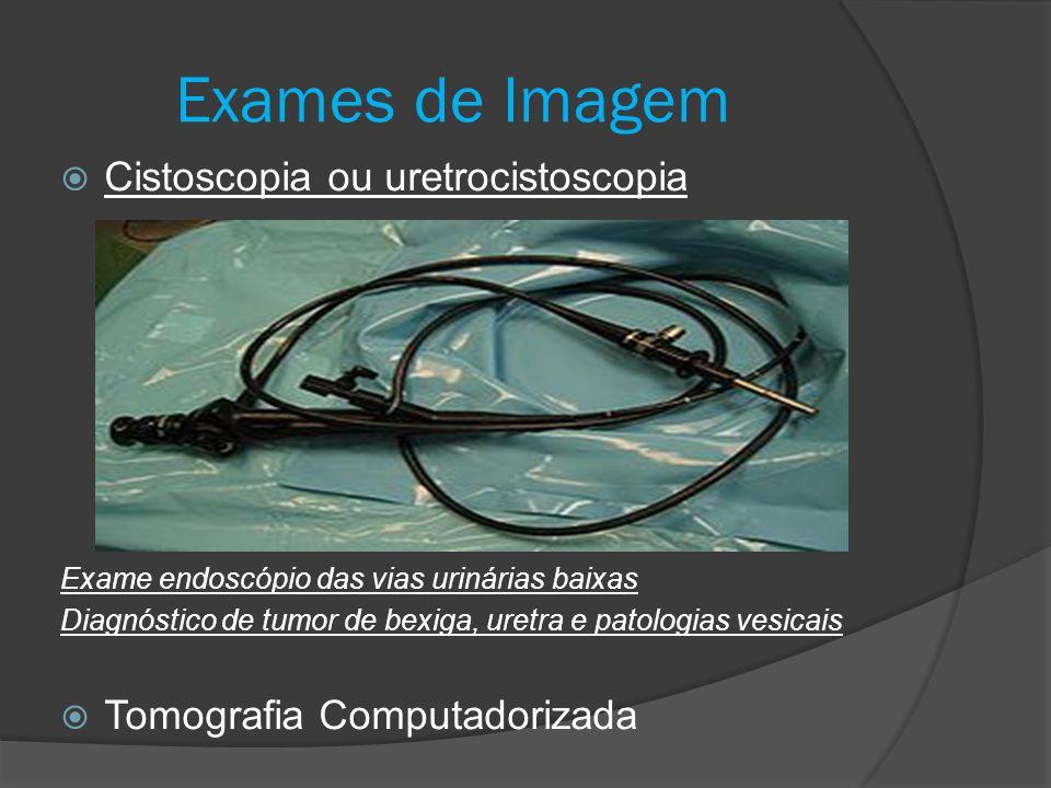Exames de Imagem Cistoscopia ou uretrocistoscopia