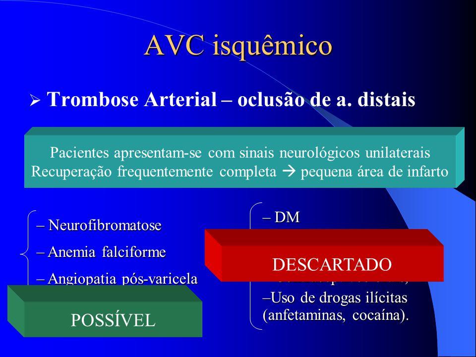 AVC isquêmico Trombose Arterial – oclusão de a. distais DESCARTADO