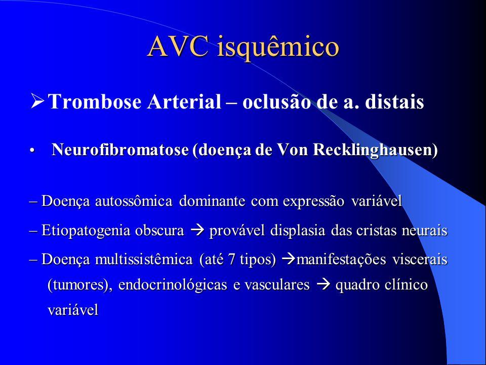 AVC isquêmico Trombose Arterial – oclusão de a. distais