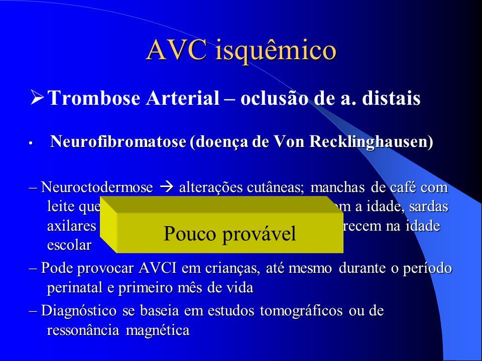 AVC isquêmico Trombose Arterial – oclusão de a. distais Pouco provável