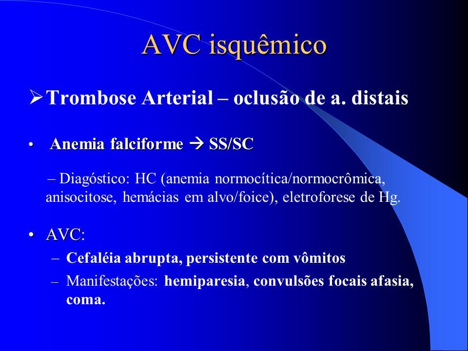 AVC isquêmico Trombose Arterial – oclusão de a. distais AVC: