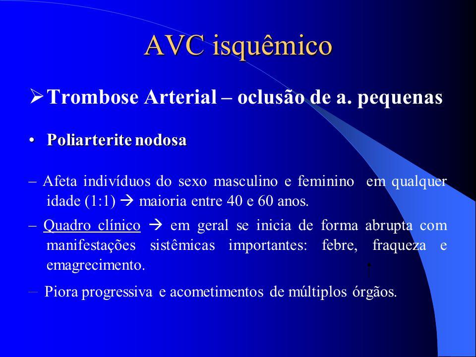 AVC isquêmico Trombose Arterial – oclusão de a. pequenas