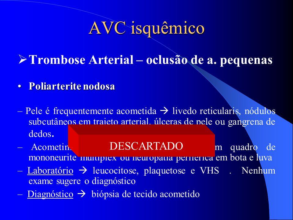 AVC isquêmico Trombose Arterial – oclusão de a. pequenas DESCARTADO