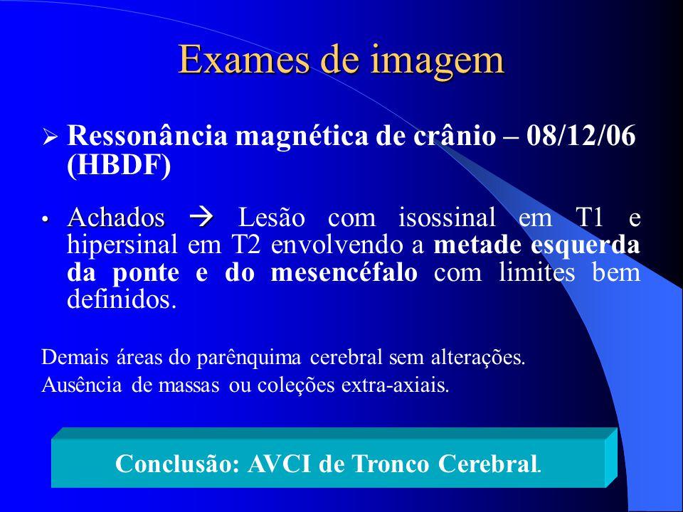 Conclusão: AVCI de Tronco Cerebral.