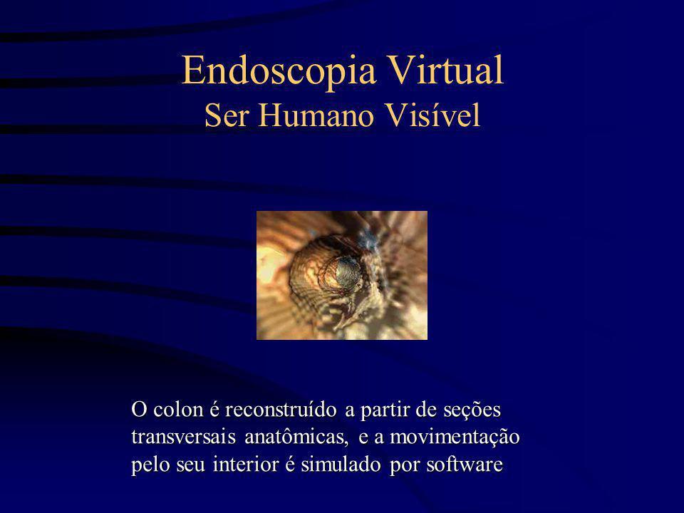 Endoscopia Virtual Ser Humano Visível