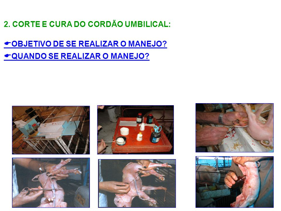 2. CORTE E CURA DO CORDÃO UMBILICAL: