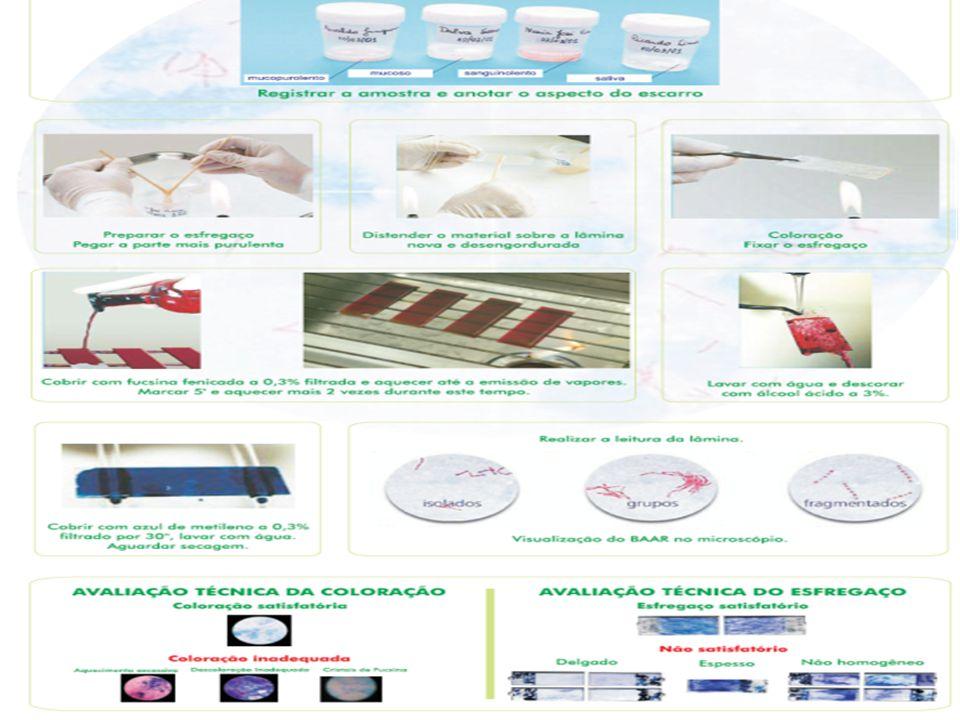 Baciloscopia Descrição