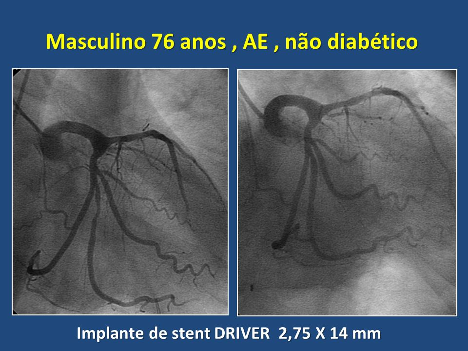 Masculino 76 anos , AE , não diabético