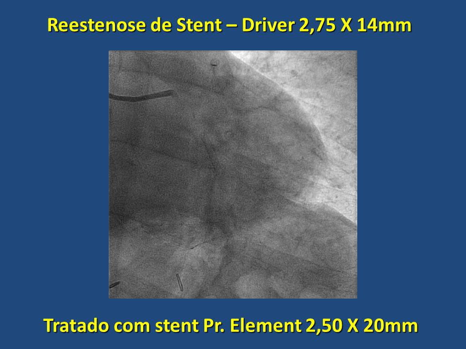 Reestenose de Stent – Driver 2,75 X 14mm