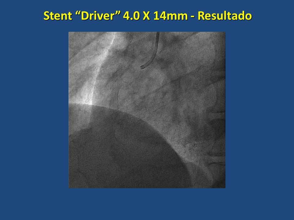Stent Driver 4.0 X 14mm - Resultado