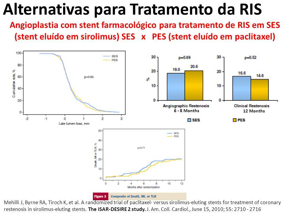 Alternativas para Tratamento da RIS