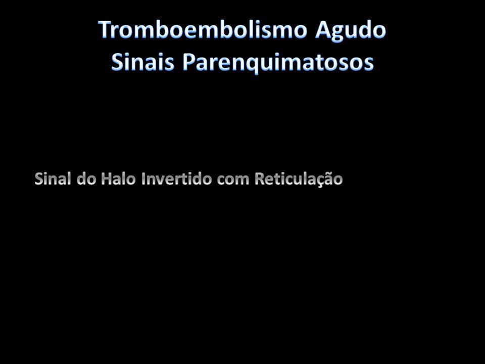 Tromboembolismo Agudo Sinais Parenquimatosos