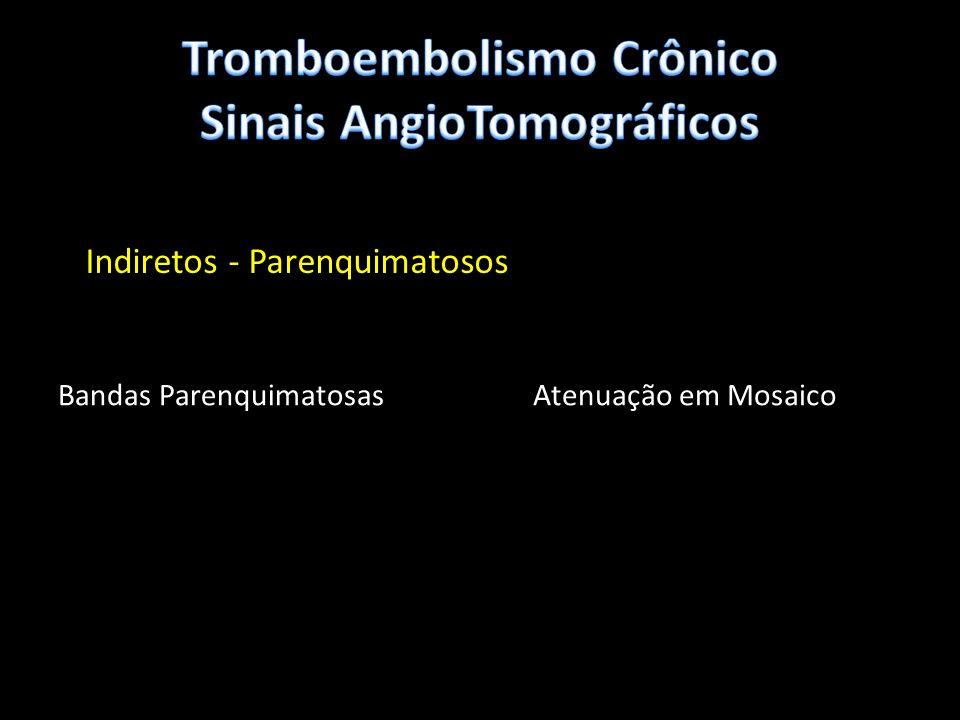 Tromboembolismo Crônico Sinais AngioTomográficos