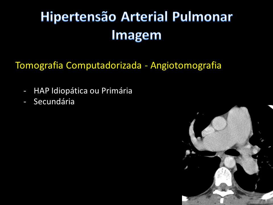 Hipertensão Arterial Pulmonar Imagem