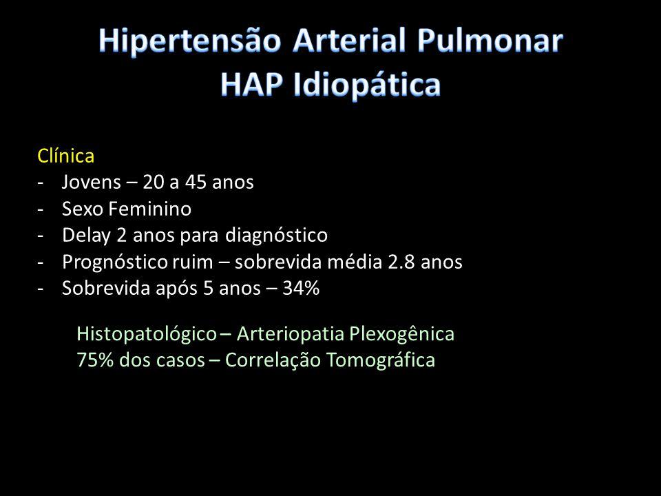 Hipertensão Arterial Pulmonar HAP Idiopática