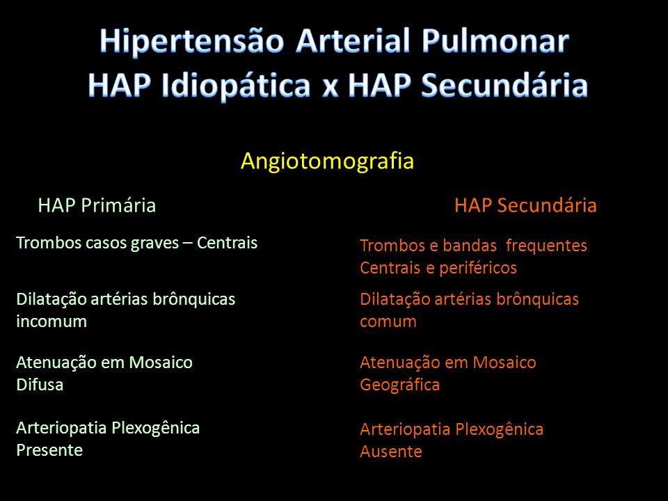 Hipertensão Arterial Pulmonar HAP Idiopática x HAP Secundária