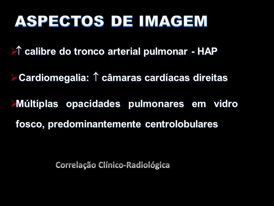 ASPECTOS DE IMAGEM  calibre do tronco arterial pulmonar - HAP