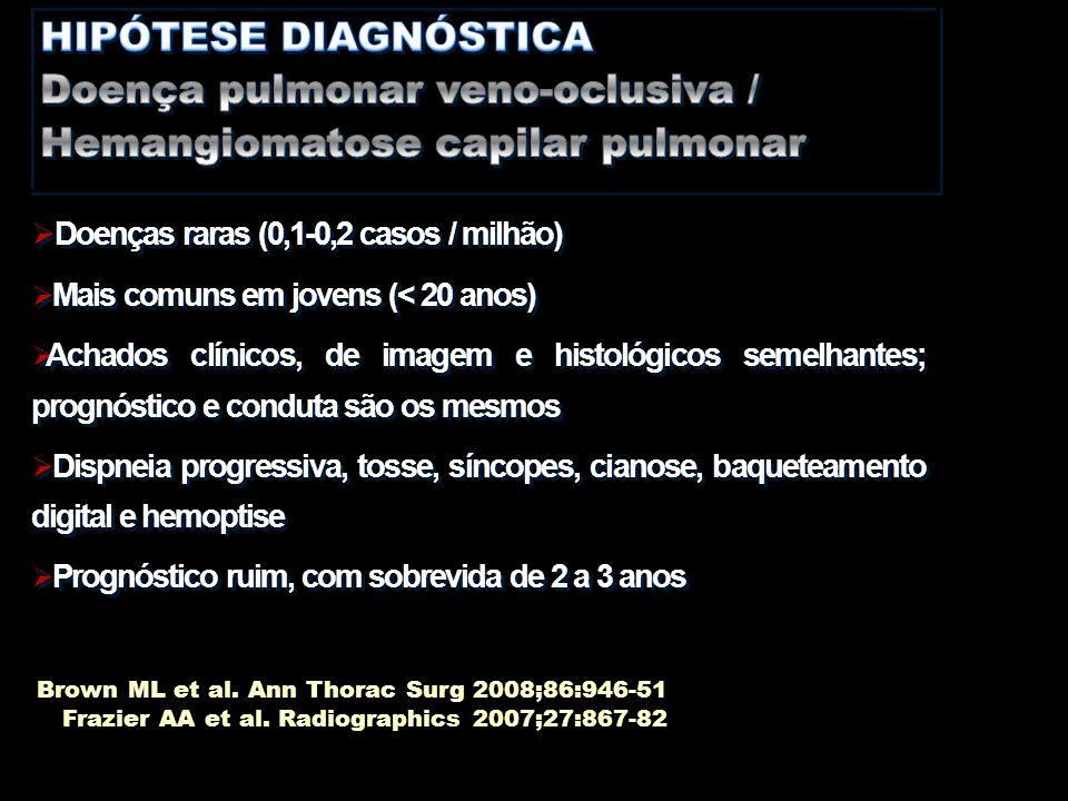 HIPÓTESE DIAGNÓSTICA Doença pulmonar veno-oclusiva / Hemangiomatose capilar pulmonar