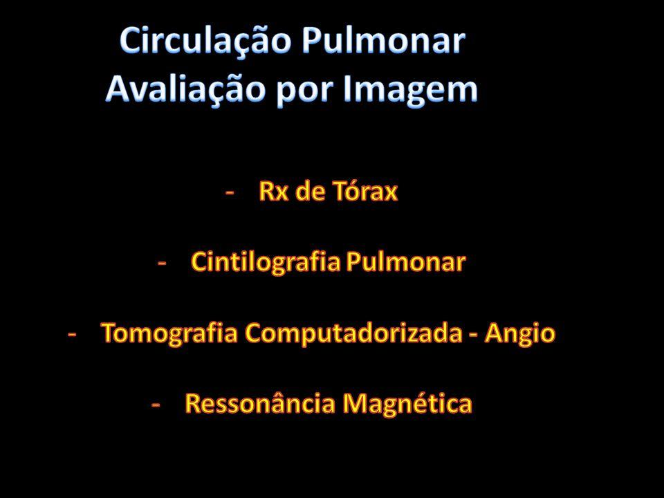 Circulação Pulmonar Avaliação por Imagem