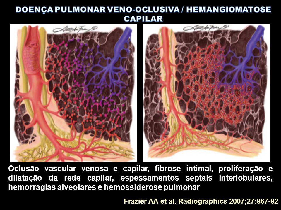 DOENÇA PULMONAR VENO-OCLUSIVA / HEMANGIOMATOSE CAPILAR
